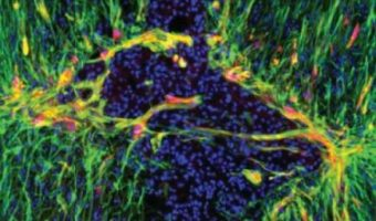 Gene Therapy May Help Brain Heal From Stroke, Other Injuries